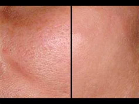 HOW TO: MAKE PORES DISAPPEAR IN SECONDS - GOOD FOR ACNE
