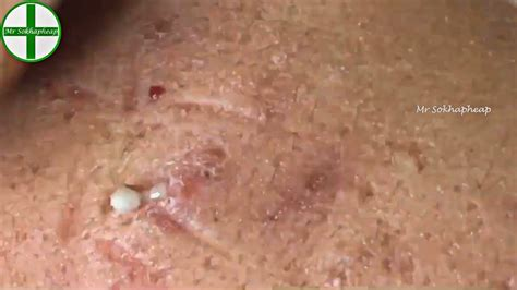 Deep Whiteheads Removal On Face - Acne Treatment 171112